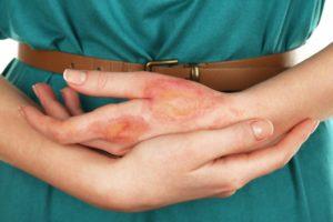 Как и чем можно лечить ожог от утюга на коже