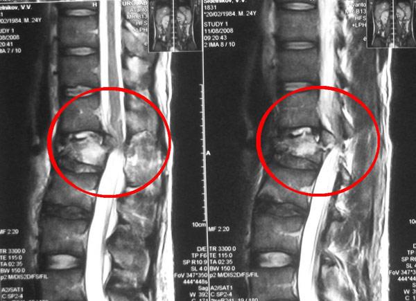 Перелом поясничного отдела позвоночника: лечение, длительность ...