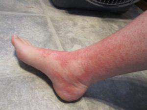 отек ног после солнечного ожога