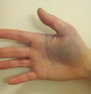 Как лечить перелом большого пальца руки