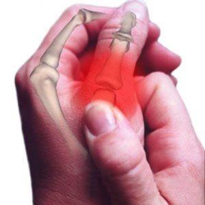 Как возникает перелом большого пальца руки
