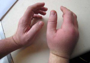 лечить ушиб кисти руки