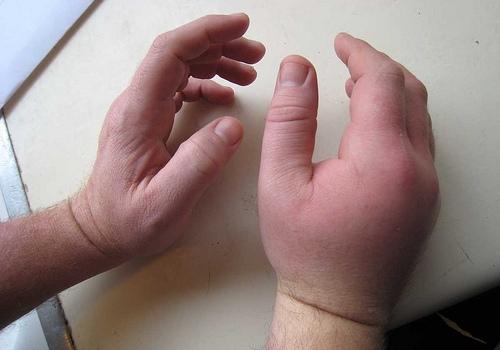 Ушиб кисти руки: первая помощь, диагностика, лечение