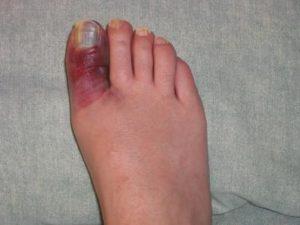 лечить ушиб пальца ноги