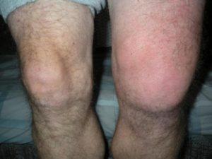 Как лечиться, если опухло колено без ушиба и болит