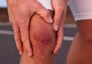 Как лечиться, если опухло колено