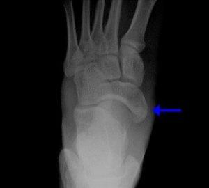 Как лечится перелом ладьевидной кости руки и стопы