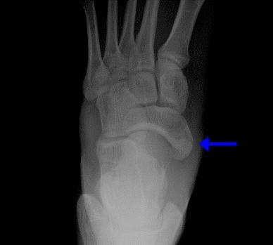 Перелом ладьевидной кости руки и стопы: лечение