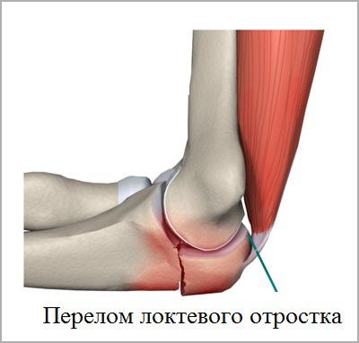 Перелом локтевого отростка: лечение, операция, реабилитация
