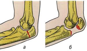 перелом локтевого отростка и реабилитация после него