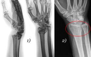 перелом лучевой кости руки со смещением и без