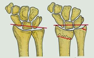 Симптомы перелома шиловидного отростка локтевой кости
