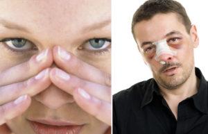 лечится ушиб носа у ребенка