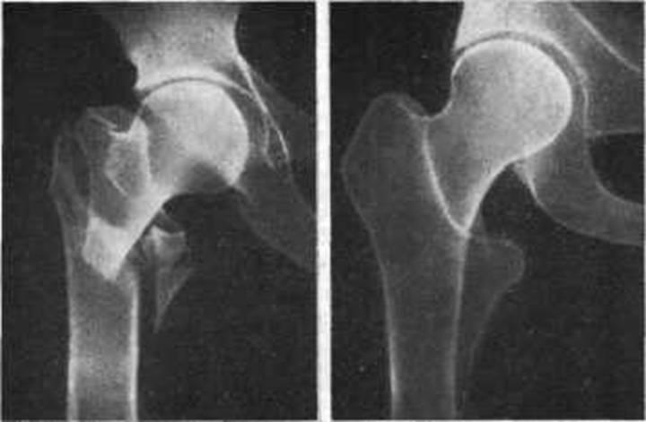 Как лечится вколоченный перелом шейки бедра и реабилитация после него