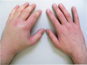 лечить вывих кисти руки