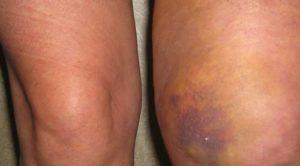 Как можно лечить ушиб колена при падении в домашних условиях