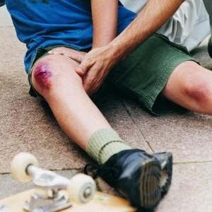 лечить ушиб колена при падении в домашних условиях