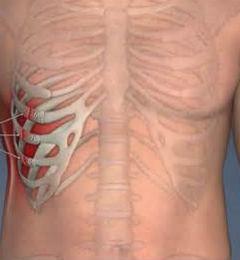 Как можно определить перелом ребра или ушиб