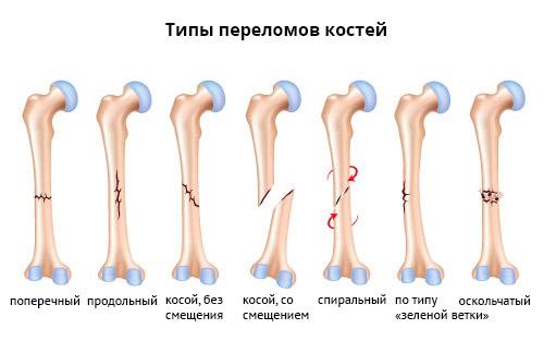 Как можно ускорить срастание перелома костей руки: советы