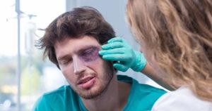 Как оказать первую помощь при ушибе глаза и лечение