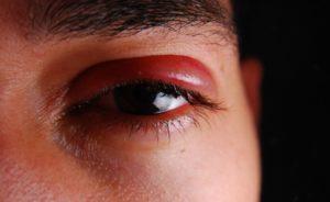 первую помощь при ушибе глаза и лечение