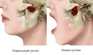 вывих челюсти и лечить