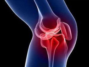 Какие бывают травмы коленного сустава и их лечение