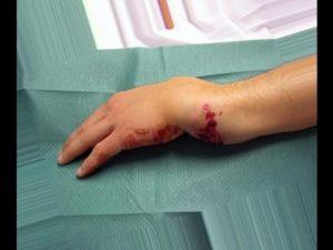 Какие основные признаки открытого перелома конечностей
