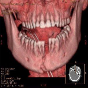 Какие симптомы и лечение перелома нижней челюсти