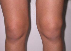 Какие симптомы и лечение травмы мениска коленного сустава