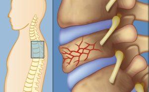 Какие симптомы имеет компрессионный перелом грудного отдела позвоночника и лечение