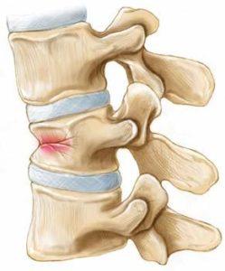 компрессионный перелом грудного отдела позвоночника и лечение