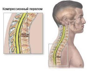 перелом грудного отдела позвоночник