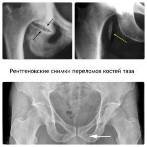 могут быть последствия после перелома костей таза
