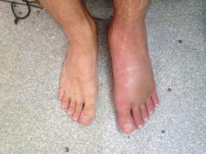 Какое лечение будет эффективным после отека стопы левой ноги после травмы
