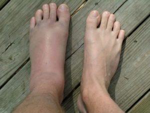 лечение отека стопы левой ноги после травмы