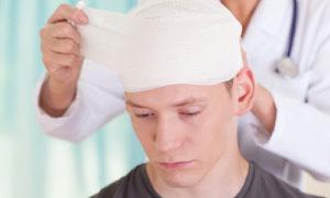 помощь при черепно-мозговой травме