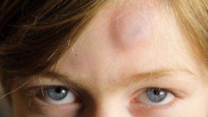 мазь от ушибов для детей