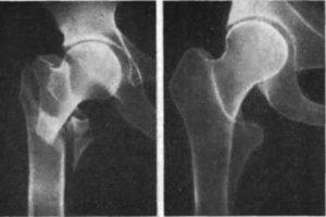 чрезвертельного перелома бедренной кости