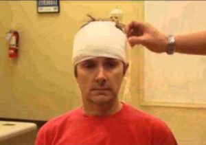гематомы на голове после ушиба