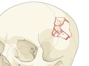 последствия перелома свода черепа