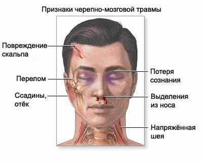 Перелом свода черепа: лечение и последствия