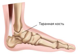 Лечение и реабилитация после перелома таранной кости