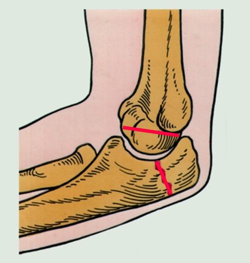 Сколько ходить в гипсе при вывихе локтевого сустава задержка окостенения ядер тазобедренных суставов 6 месяцев