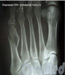 Лечение перелома пястной кости со смещением и без