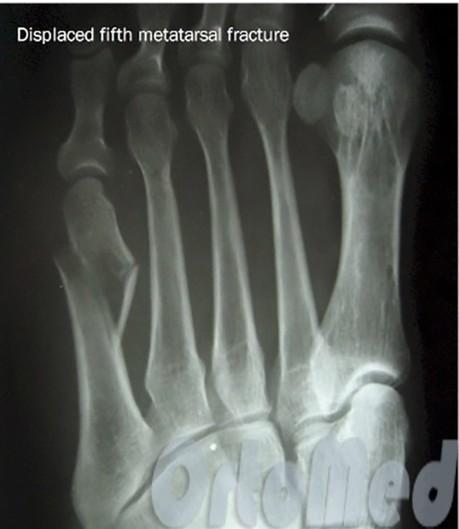Перелом пястной кости со смещением и без: лечение, препараты ...