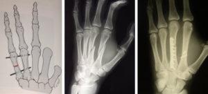 Лечение перелома пястной кости