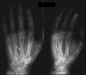 Лечение перелома пястной кости со смещением