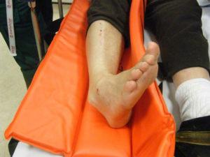 Первая помощь при вывихе голеностопного сустава и лечение
