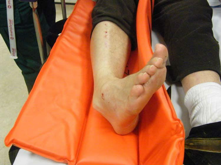 Вывих голеностопного сустава: первая помощь, лечение, реабилитация